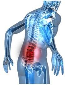 pijn in de rug bij zitten, hernia